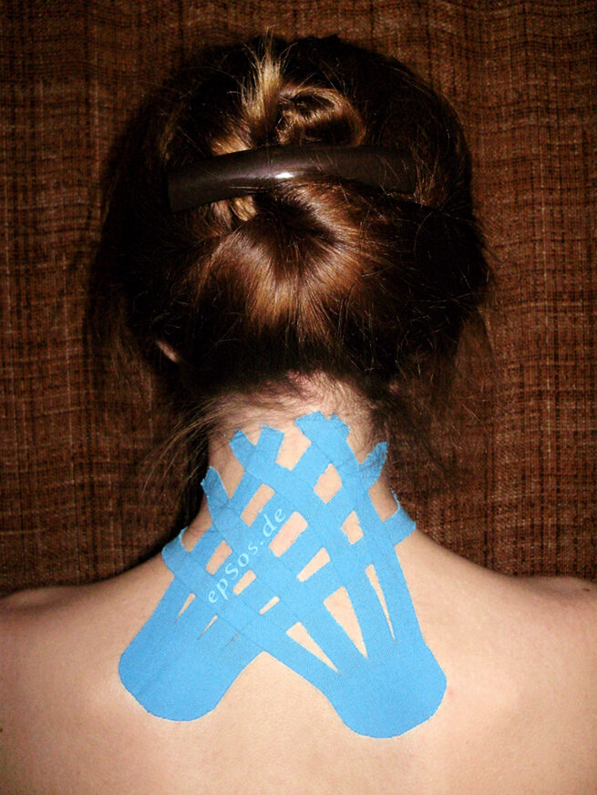 What is kinesio tape.